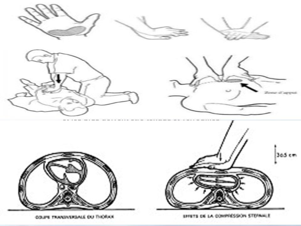 avec le talon de la paume de la main uniquement et les bras doivent être tendus et verrouillés