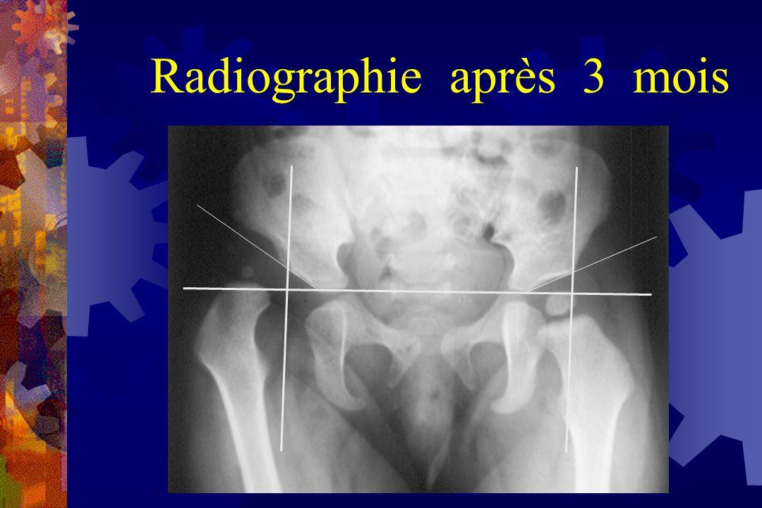 Autre pathologie de hanche suspectéeAutre pathologie de hanche suspectée Hanche à risque ou la clinique et l échographie n ont pas fait leurs preuvesHanche à risque ou la clinique et l échographie n ont pas fait leurs preuves Surveillance traitement quand échographie non utilisableSurveillance traitement quand échographie non utilisable Surveillance LCH après 4 moisSurveillance LCH après 4 mois Indications de la radiographie