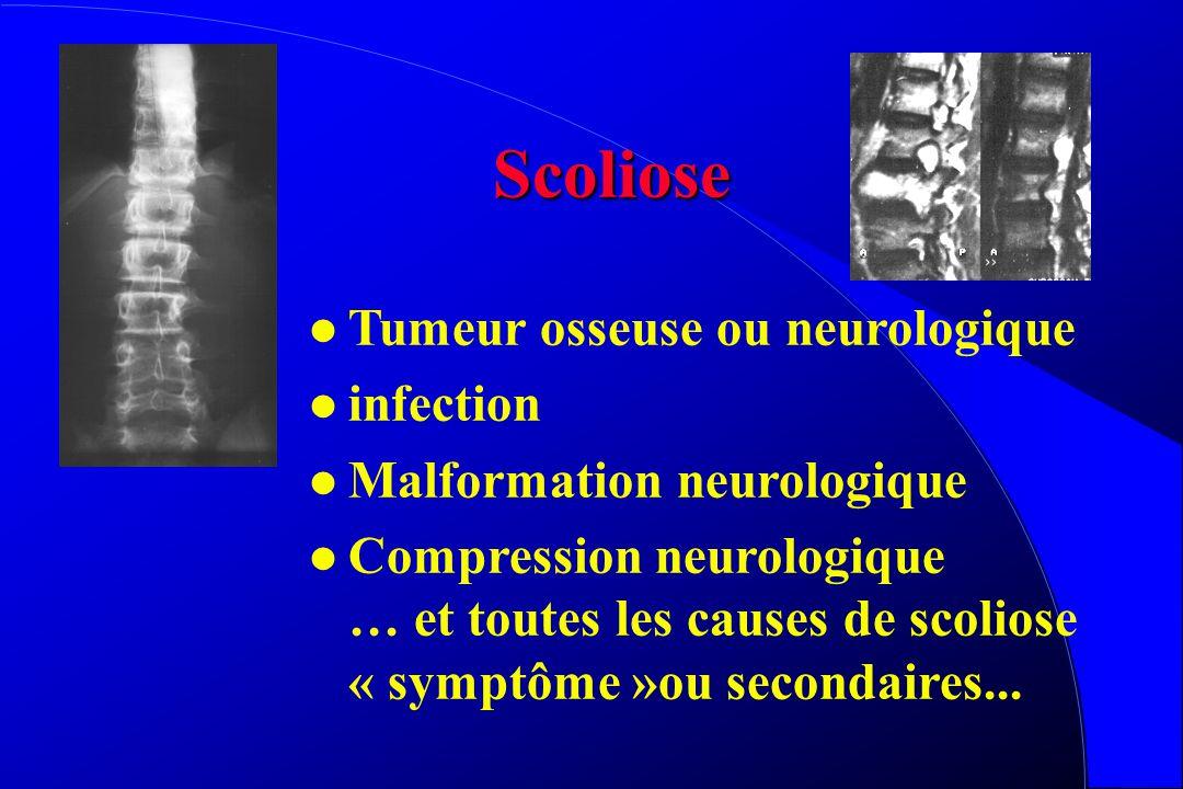 Scoliose l Une scoliose douloureuse est suspecte de complication ou d 'une étiologie secondaire l L 'examen neurologique est une obligation