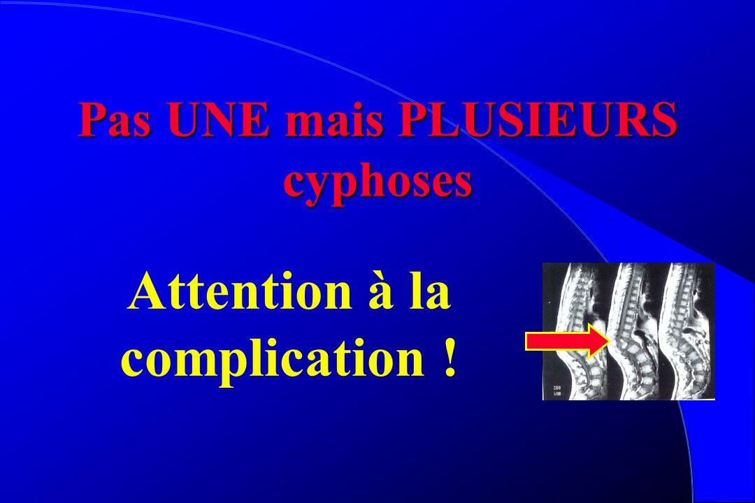 Cyphoses