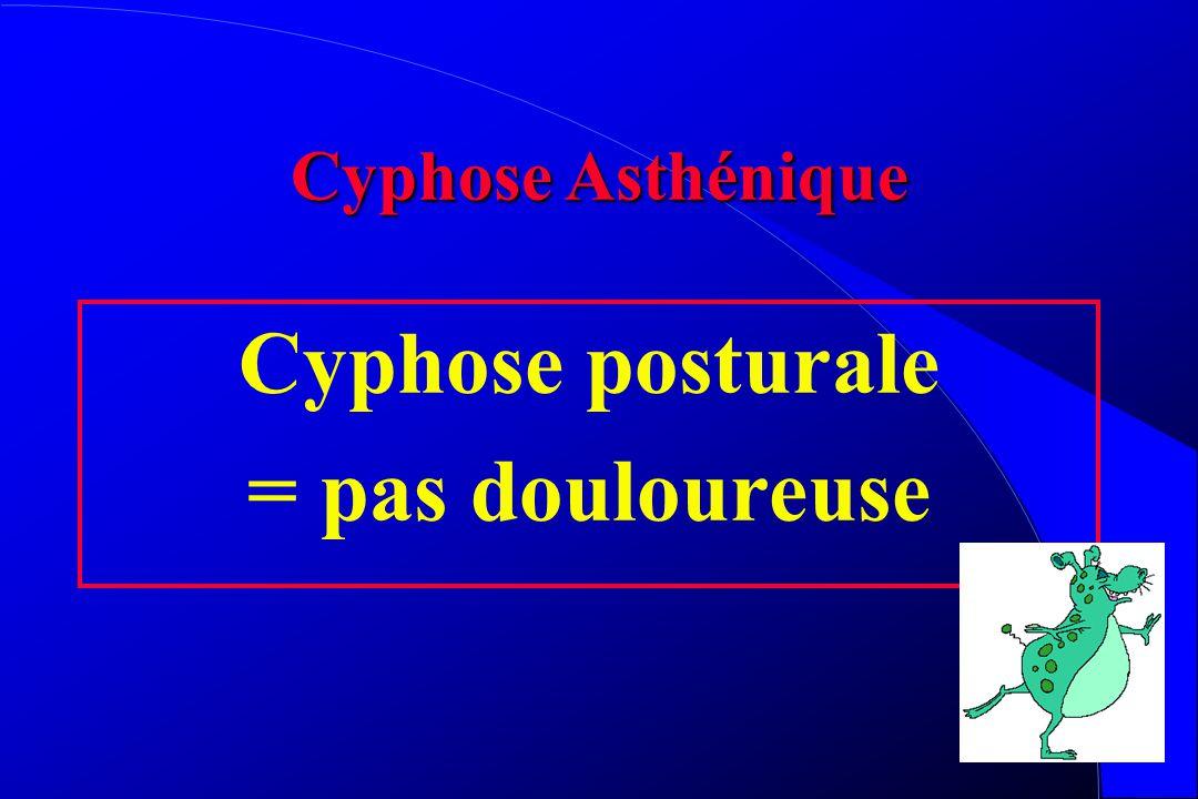 Cyphoses Etiologie = douleur Aggravation et complication neurologique = douleur