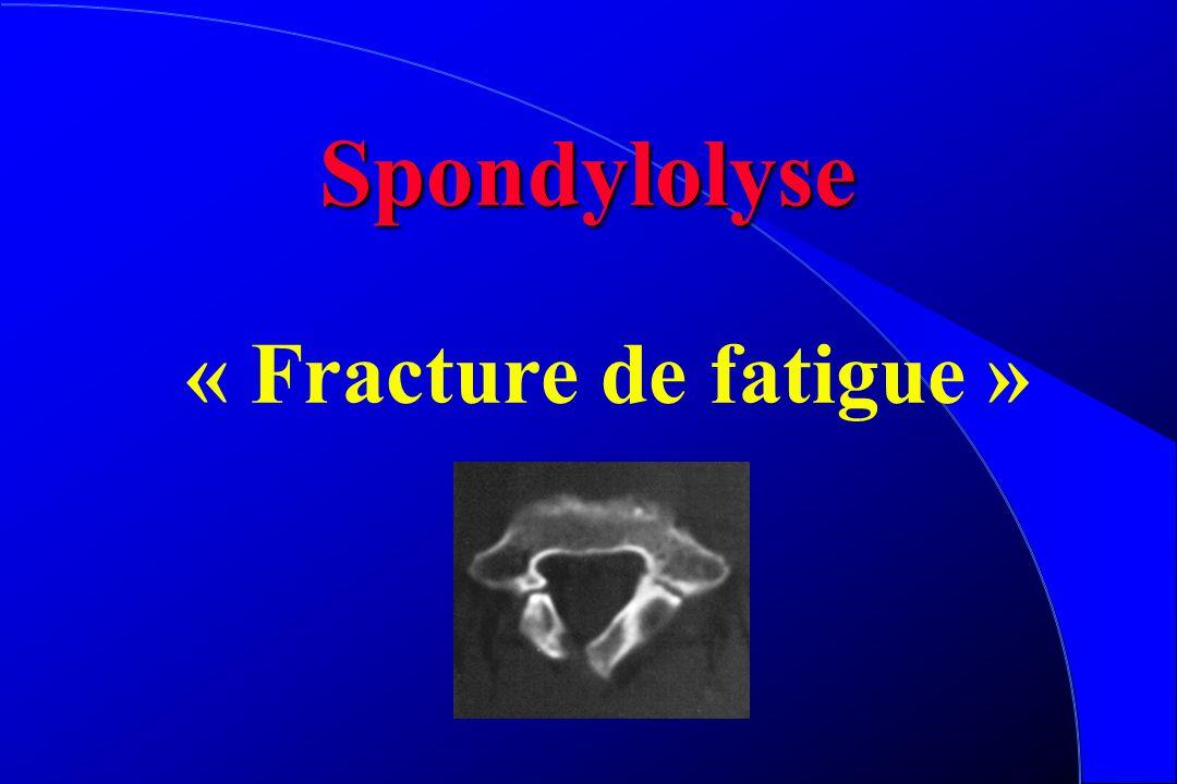 Spondylolisthesis l Douleur = Instabilité l Lombalgie, sciatique, rétractions l Nouveau bilan