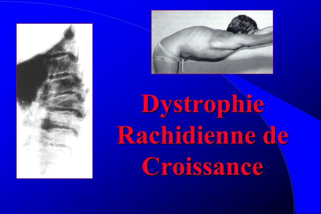 Spondylolyse Douloureuse si brutale et récente Raideur Consolidation difficile