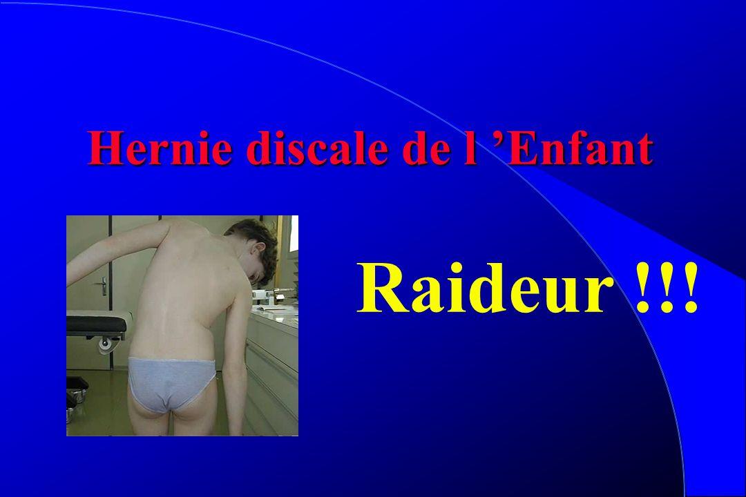 Hernie discale l Rare l tableau dominé par la raideur l peu de signes neuro l IRM l Avulsion listel (étiol traumato) l Repos, AINS, Plâtre, échec = ch