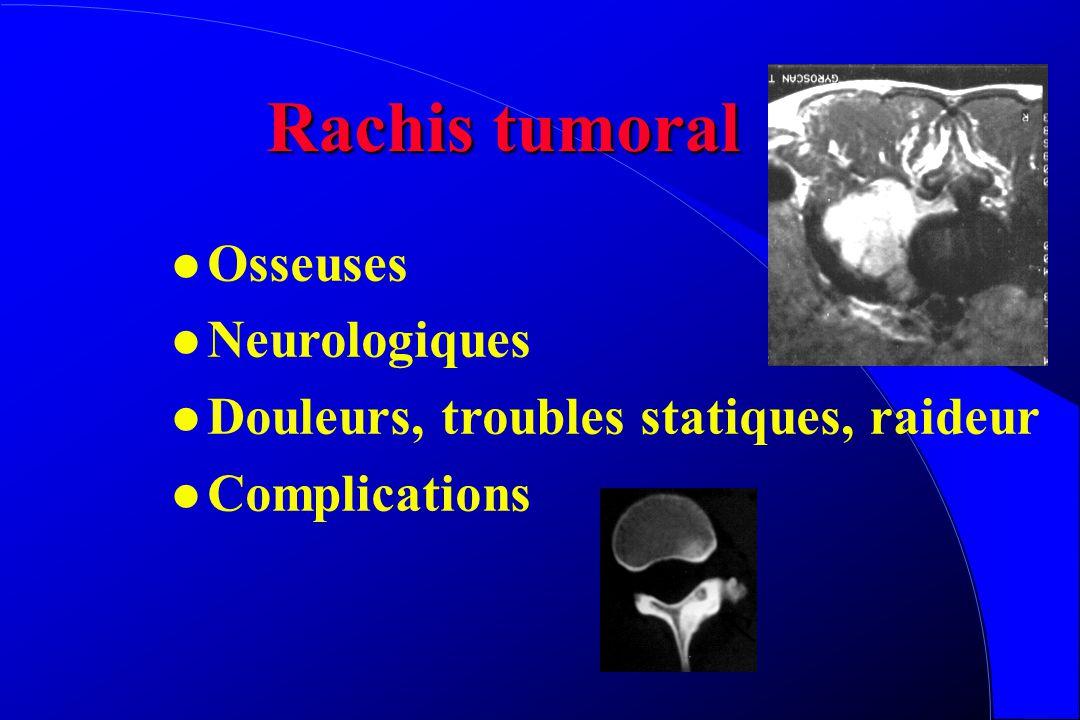 Rachis Inflammatoire Arthrite chronique juvénile Spondylarthrite ankylosante