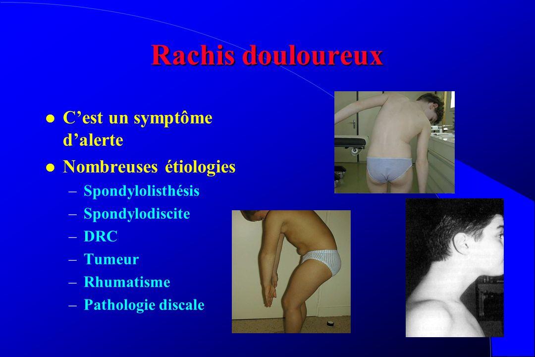 Rachis douloureux l C'est un symptôme d'alerte l Nombreuses étiologies –Spondylolisthésis –Spondylodiscite –DRC –Tumeur –Rhumatisme –Pathologie discale