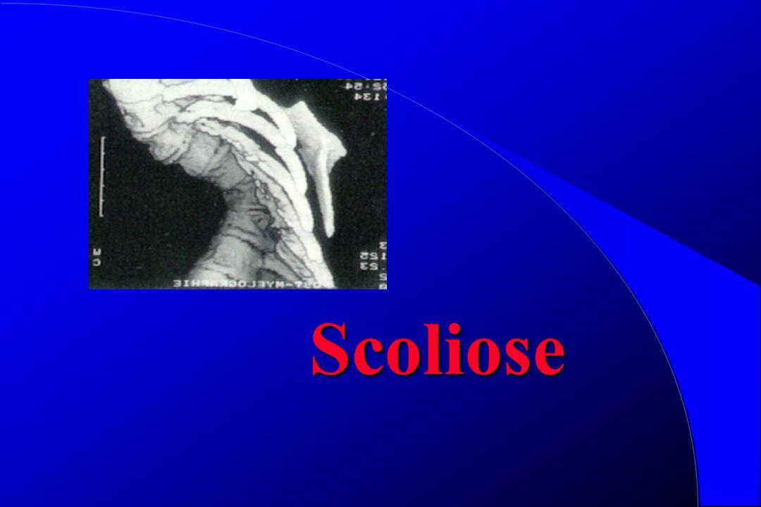 Cyphose Asthénique Cyphose posturale = pas douloureuse