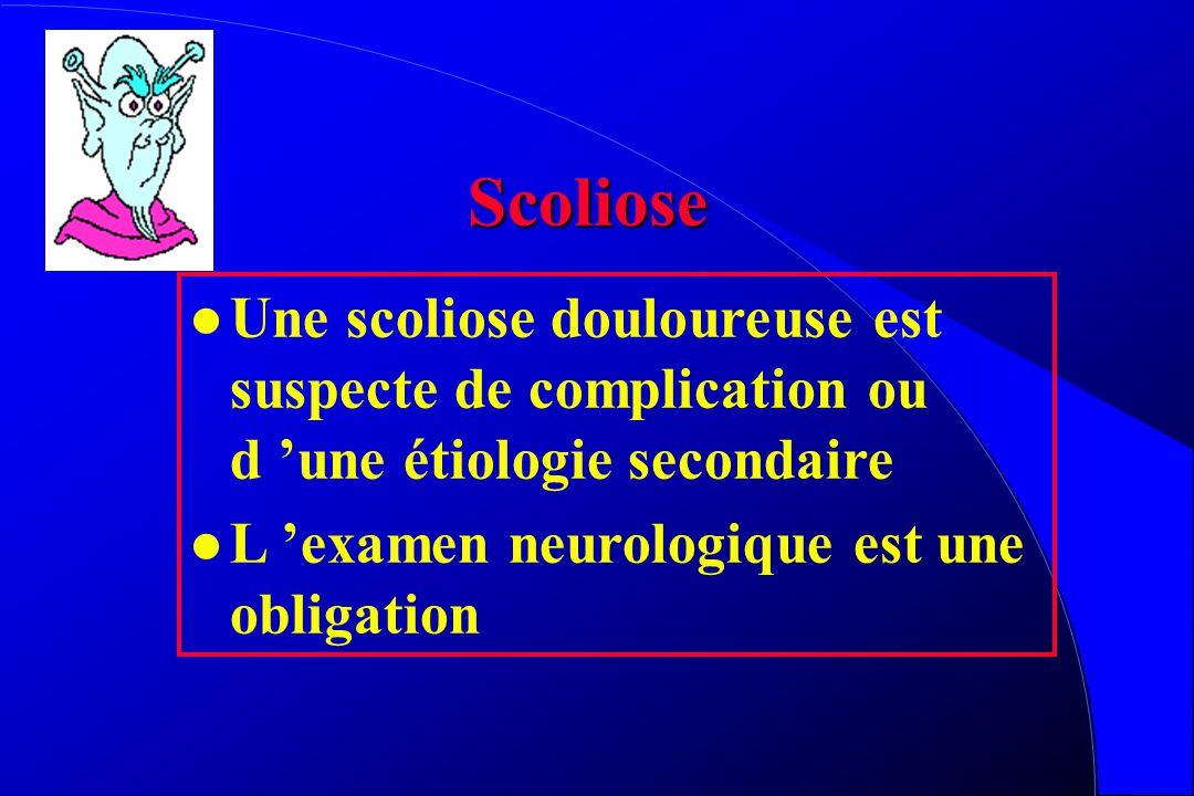 Spondylolisthesis Attention à la Déstabilisation !