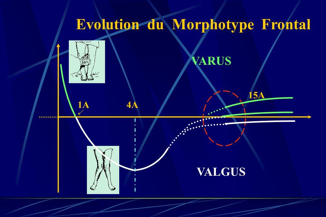 Evolution du Morphotype Frontal 1A VARUS VALGUS 15A 4A