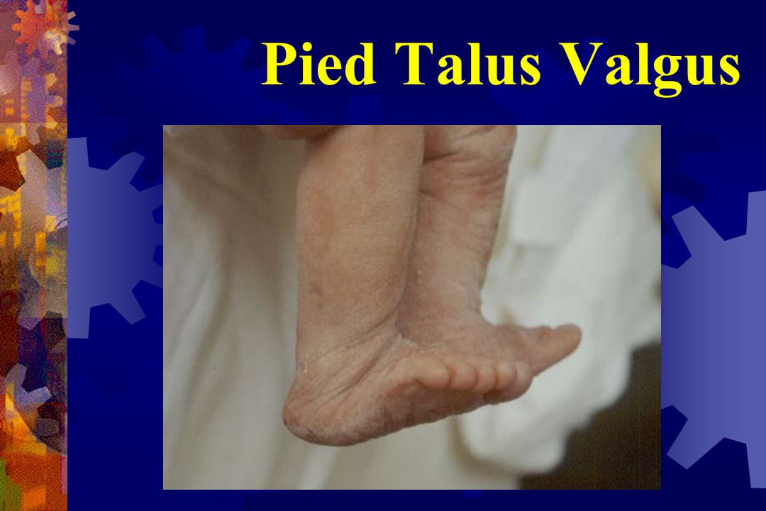 Pied Talus Direct