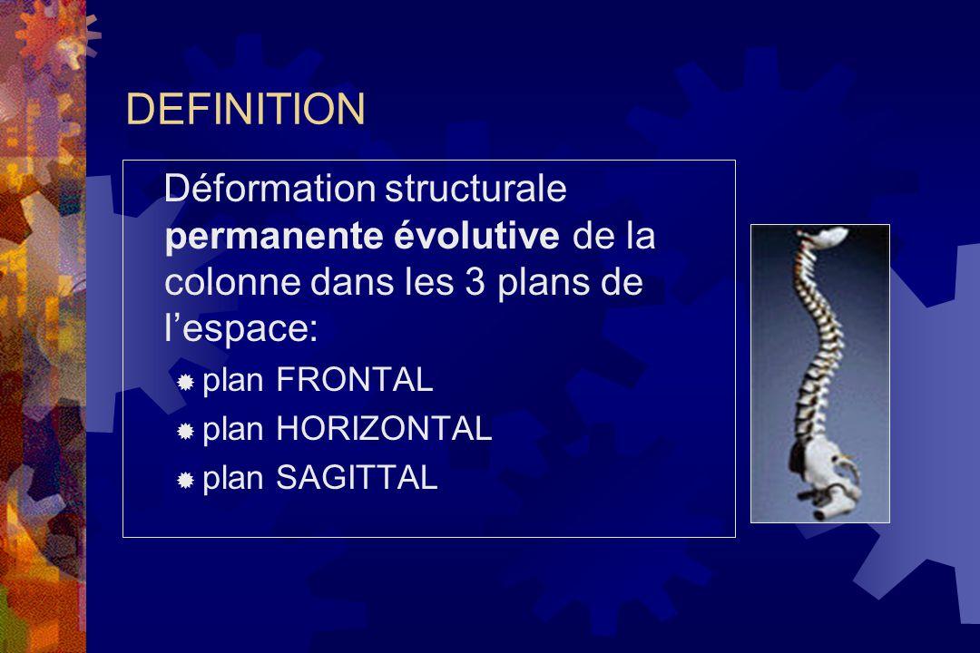 DEFINITION Déformation structurale permanente évolutive de la colonne dans les 3 plans de l'espace:  plan FRONTAL  plan HORIZONTAL  plan SAGITTAL