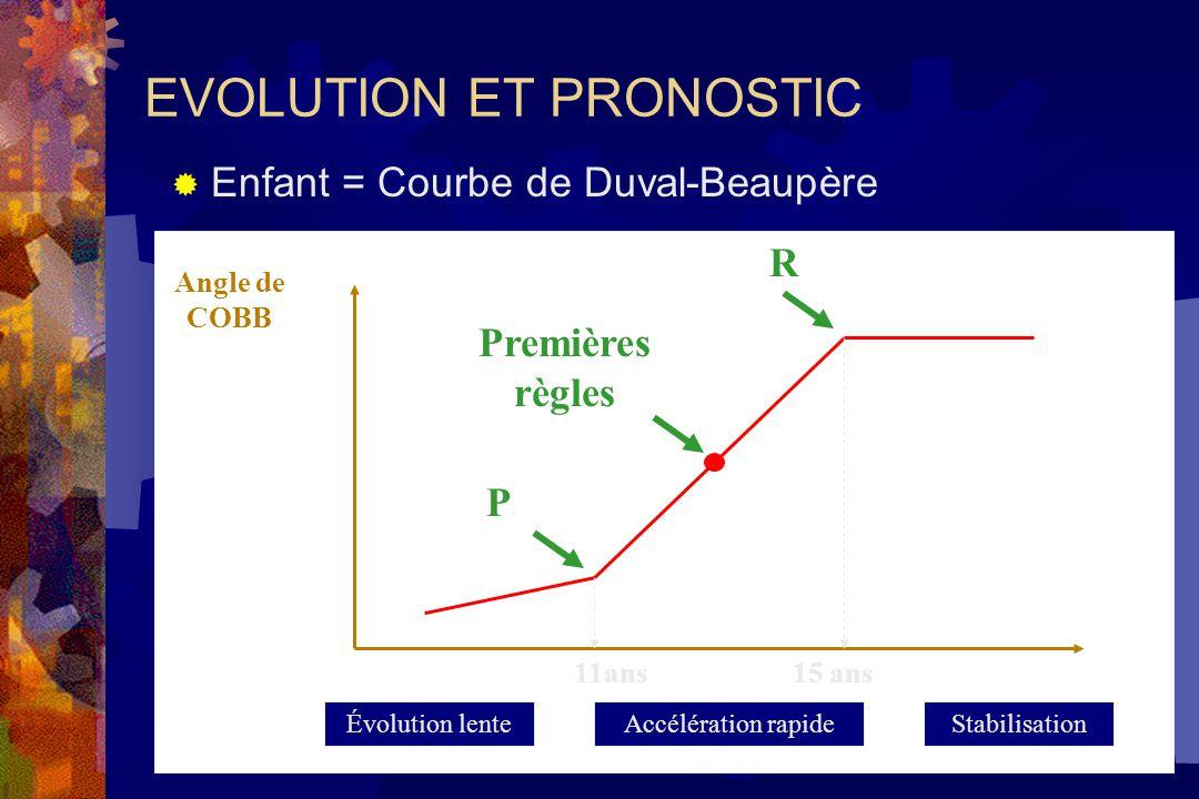 EVOLUTION ET PRONOSTIC  Enfant = Courbe de Duval-Beaupère Angle de COBB 11ans 15 ans P R Premières règles Évolution lenteAccélération rapideStabilisation
