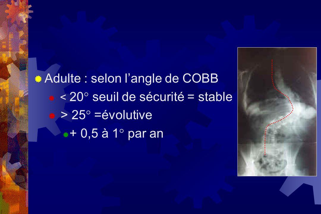  Adulte : selon l'angle de COBB  < 20° seuil de sécurité = stable  > 25° =évolutive  + 0,5 à 1° par an