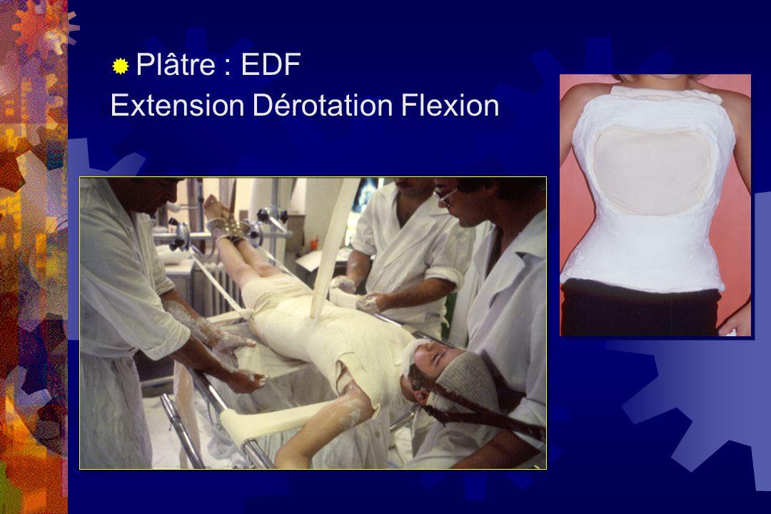  Plâtre : EDF Extension Dérotation Flexion