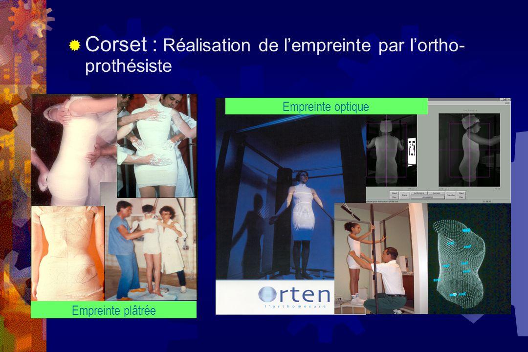  Corset : Réalisation de l'empreinte par l'ortho- prothésiste Empreinte optique Empreinte plâtrée