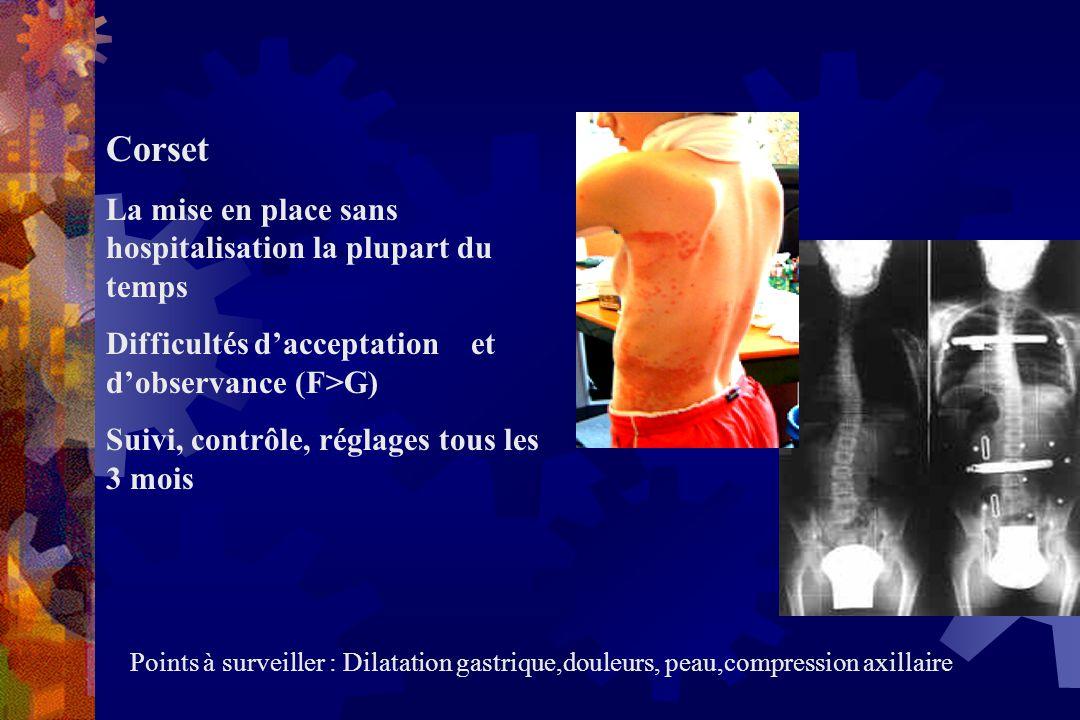 Corset La mise en place sans hospitalisation la plupart du temps Difficultés d'acceptation et d'observance (F>G) Suivi, contrôle, réglages tous les 3 mois Points à surveiller : Dilatation gastrique,douleurs, peau,compression axillaire