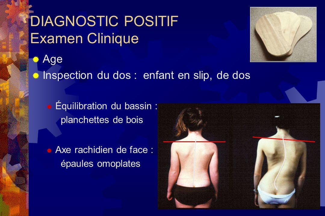 DIAGNOSTIC POSITIF Examen Clinique  Age  Inspection du dos : enfant en slip, de dos  Équilibration du bassin : planchettes de bois  Axe rachidien de face : épaules omoplates
