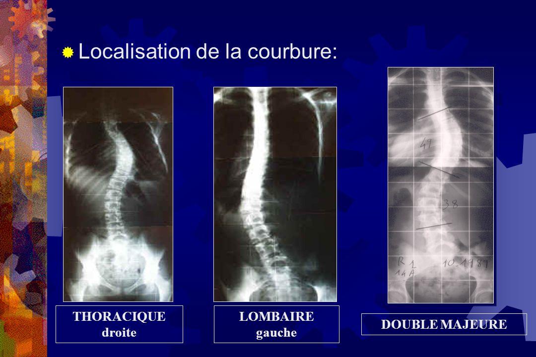  Déformation du plan HORIZONTAL: rotation des corps vertébraux