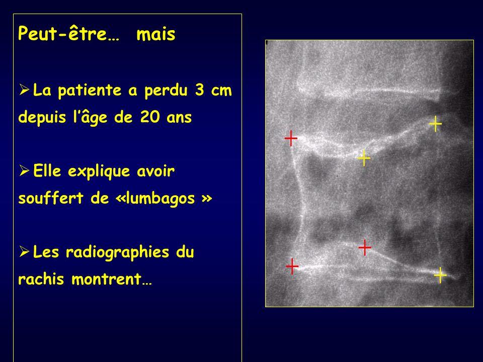 Peut-être… mais  La patiente a perdu 3 cm depuis l'âge de 20 ans  Elle explique avoir souffert de «lumbagos »  Les radiographies du rachis montrent