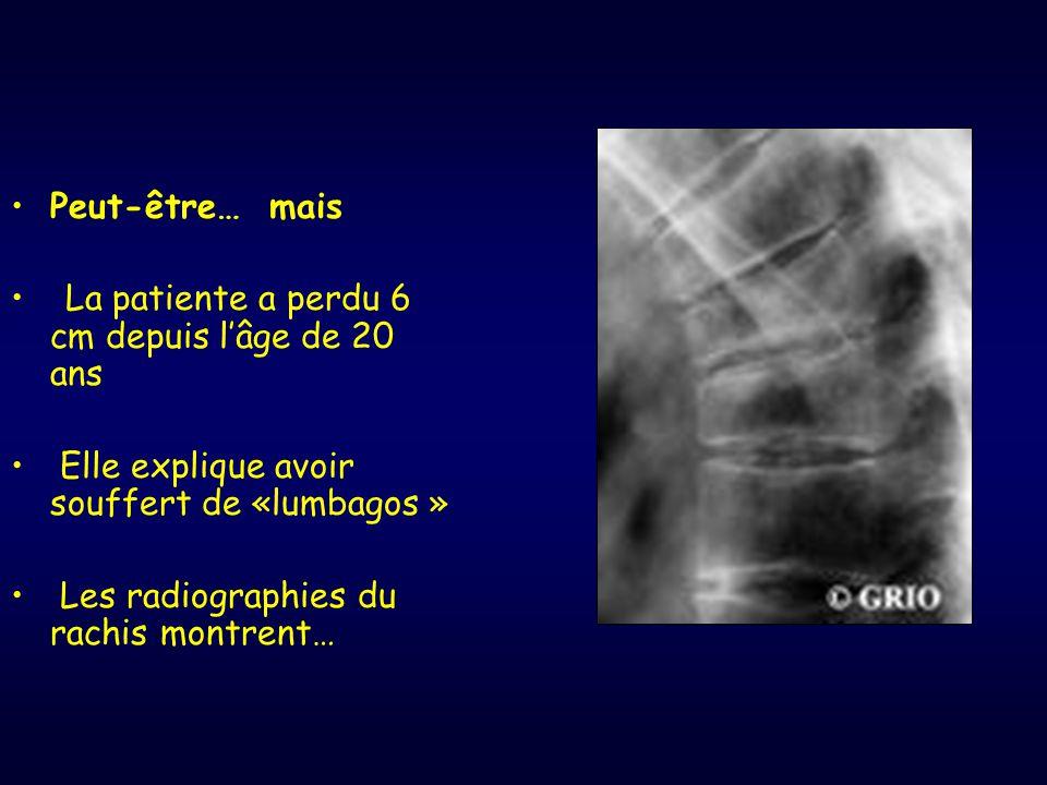 Peut-être… mais La patiente a perdu 6 cm depuis l'âge de 20 ans Elle explique avoir souffert de «lumbagos » Les radiographies du rachis montrent…