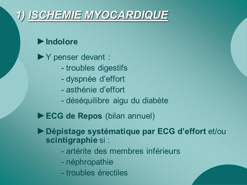 1) ISCHEMIE MYOCARDIQUE ► Indolore ► Y penser devant : - troubles digestifs - dyspnée d'effort - asthénie d'effort - déséquilibre aigu du diabète ► EC