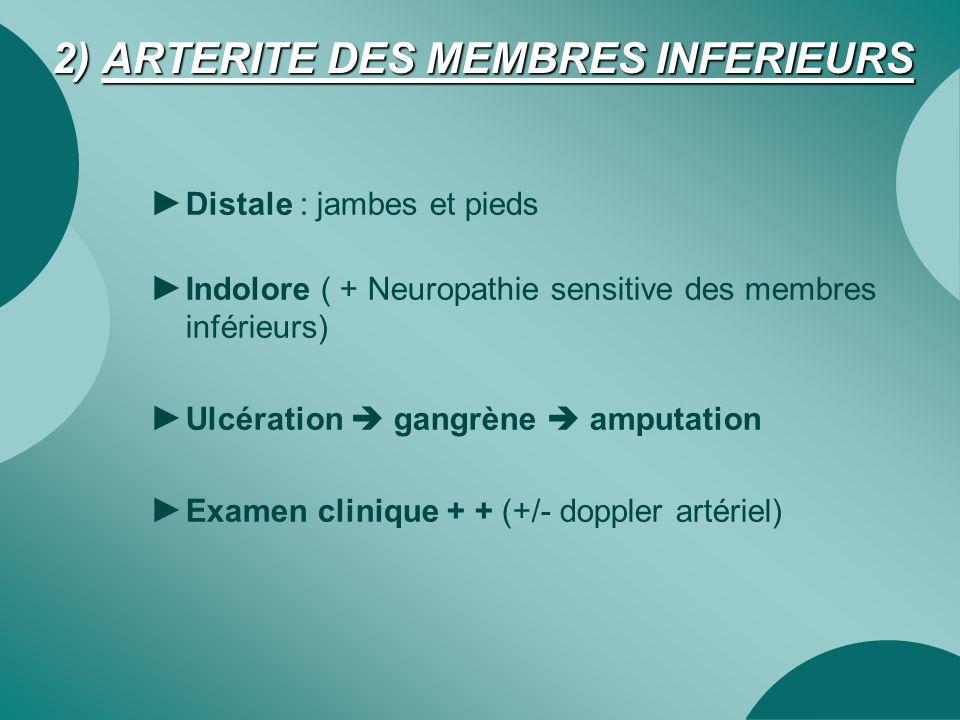 2) ARTERITE DES MEMBRES INFERIEURS ► Distale : jambes et pieds ► Indolore ( + Neuropathie sensitive des membres inférieurs) ► Ulcération  gangrène 