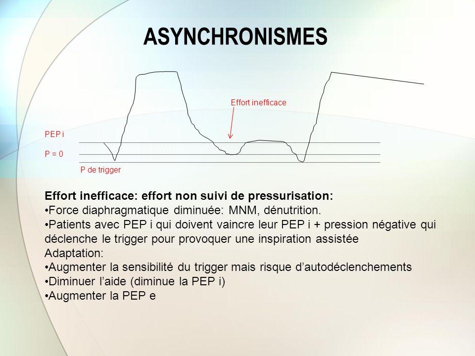 ASYNCHRONISMES Effort inefficace Effort inefficace: effort non suivi de pressurisation: Force diaphragmatique diminuée: MNM, dénutrition. Patients ave