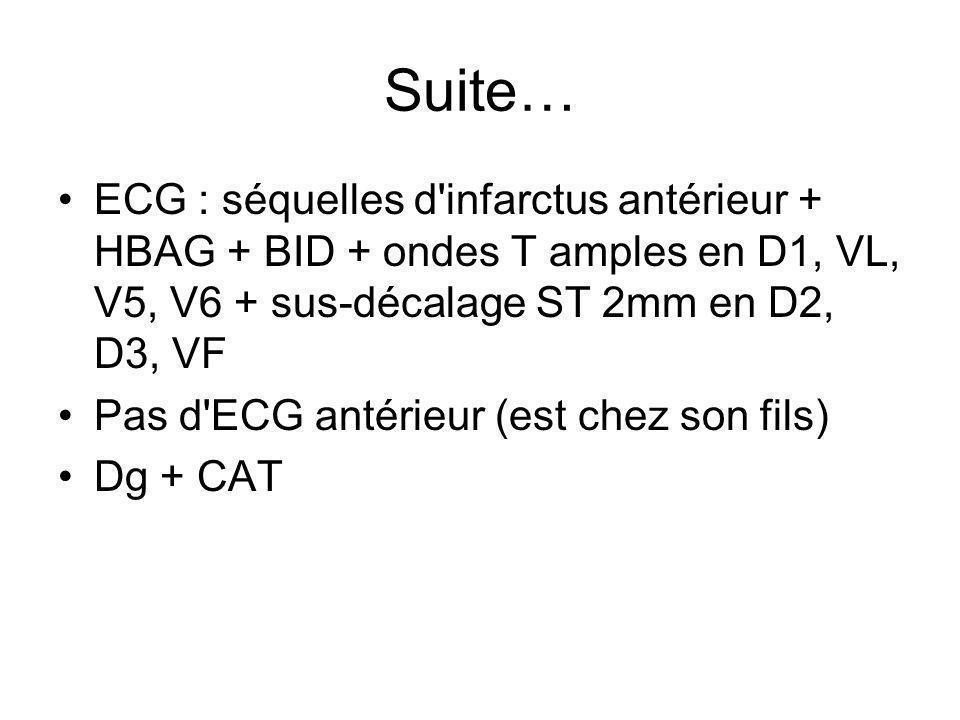 Suite… ECG : séquelles d'infarctus antérieur + HBAG + BID + ondes T amples en D1, VL, V5, V6 + sus-décalage ST 2mm en D2, D3, VF Pas d'ECG antérieur (