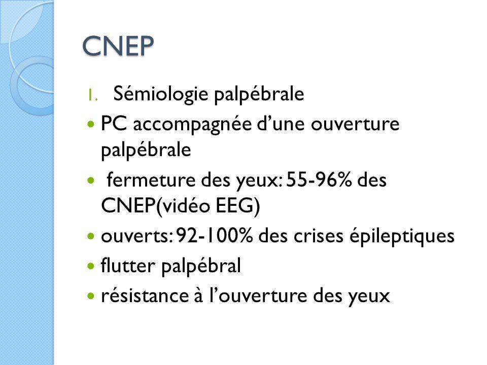 CNEP 1. Sémiologie palpébrale PC accompagnée d'une ouverture palpébrale fermeture des yeux: 55-96% des CNEP(vidéo EEG) ouverts: 92-100% des crises épi