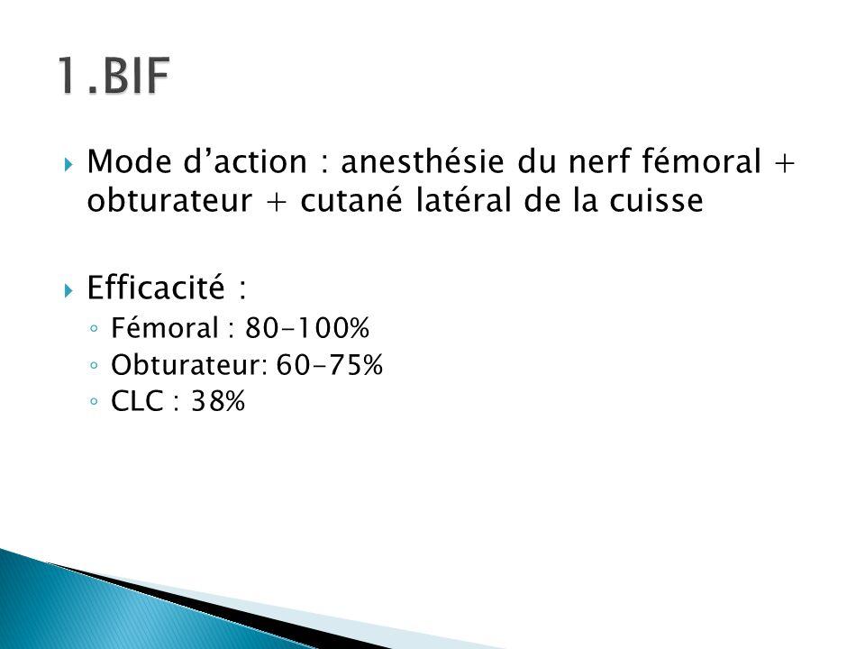  Mode d'action : anesthésie du nerf fémoral + obturateur + cutané latéral de la cuisse  Efficacité : ◦ Fémoral : 80-100% ◦ Obturateur: 60-75% ◦ CLC