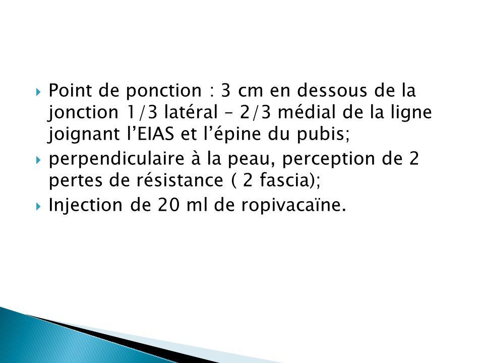  Point de ponction : 3 cm en dessous de la jonction 1/3 latéral – 2/3 médial de la ligne joignant l'EIAS et l'épine du pubis;  perpendiculaire à la