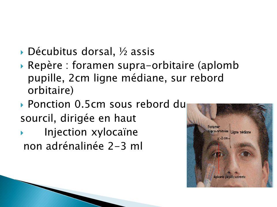  Décubitus dorsal, ½ assis  Repère : foramen supra-orbitaire (aplomb pupille, 2cm ligne médiane, sur rebord orbitaire)  Ponction 0.5cm sous rebord