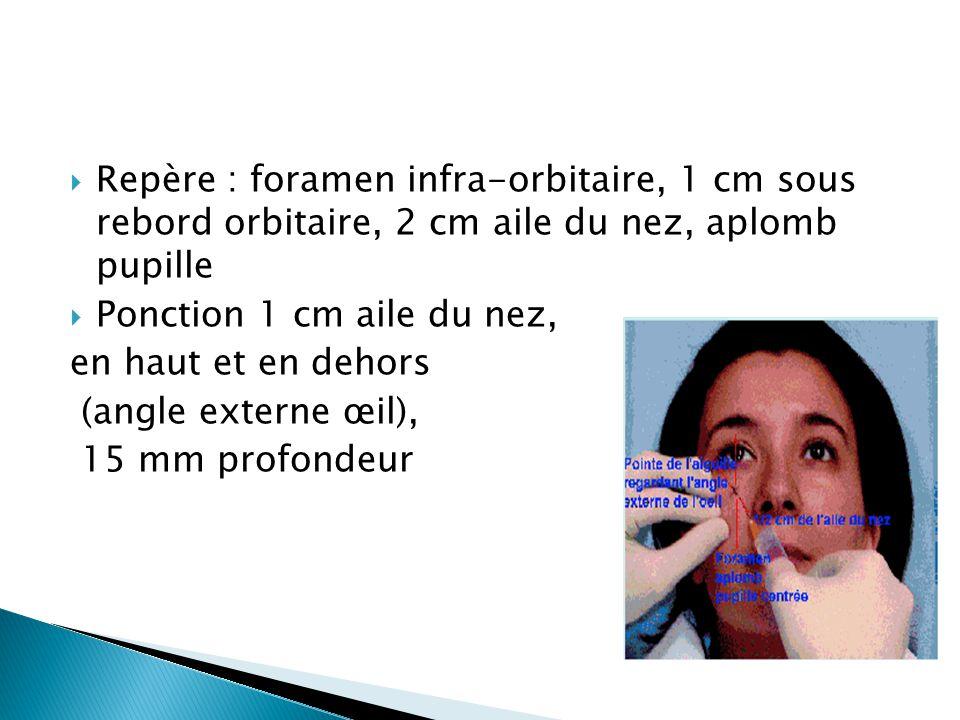  Repère : foramen infra-orbitaire, 1 cm sous rebord orbitaire, 2 cm aile du nez, aplomb pupille  Ponction 1 cm aile du nez, en haut et en dehors (an