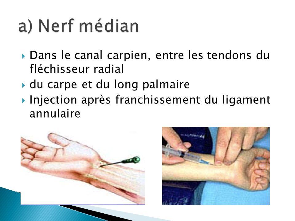  Dans le canal carpien, entre les tendons du fléchisseur radial  du carpe et du long palmaire  Injection après franchissement du ligament annulaire
