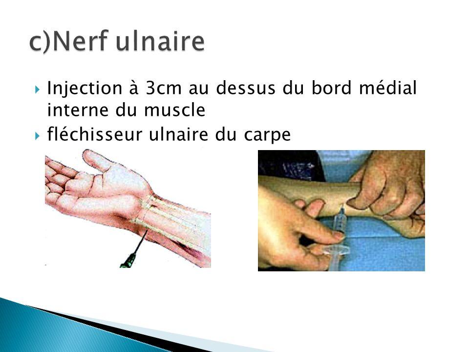  Injection à 3cm au dessus du bord médial interne du muscle  fléchisseur ulnaire du carpe