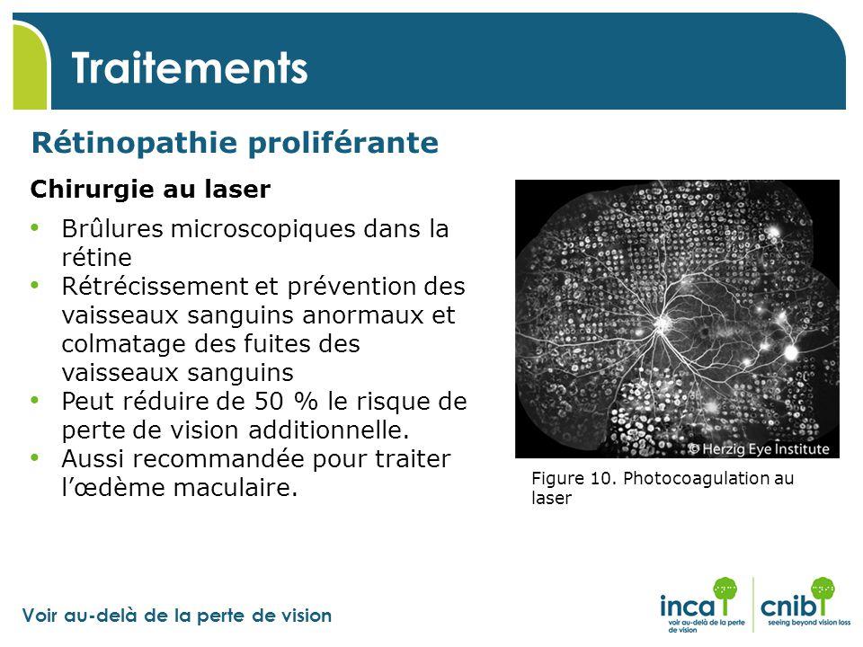 Voir au-delà de la perte de vision Traitements Rétinopathie proliférante Chirurgie au laser Figure 10. Photocoagulation au laser Brûlures microscopiqu