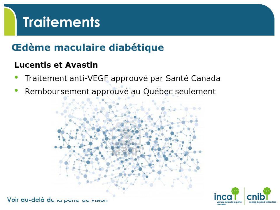 Voir au-delà de la perte de vision Traitements Œdème maculaire diabétique Lucentis et Avastin Traitement anti-VEGF approuvé par Santé Canada Rembourse