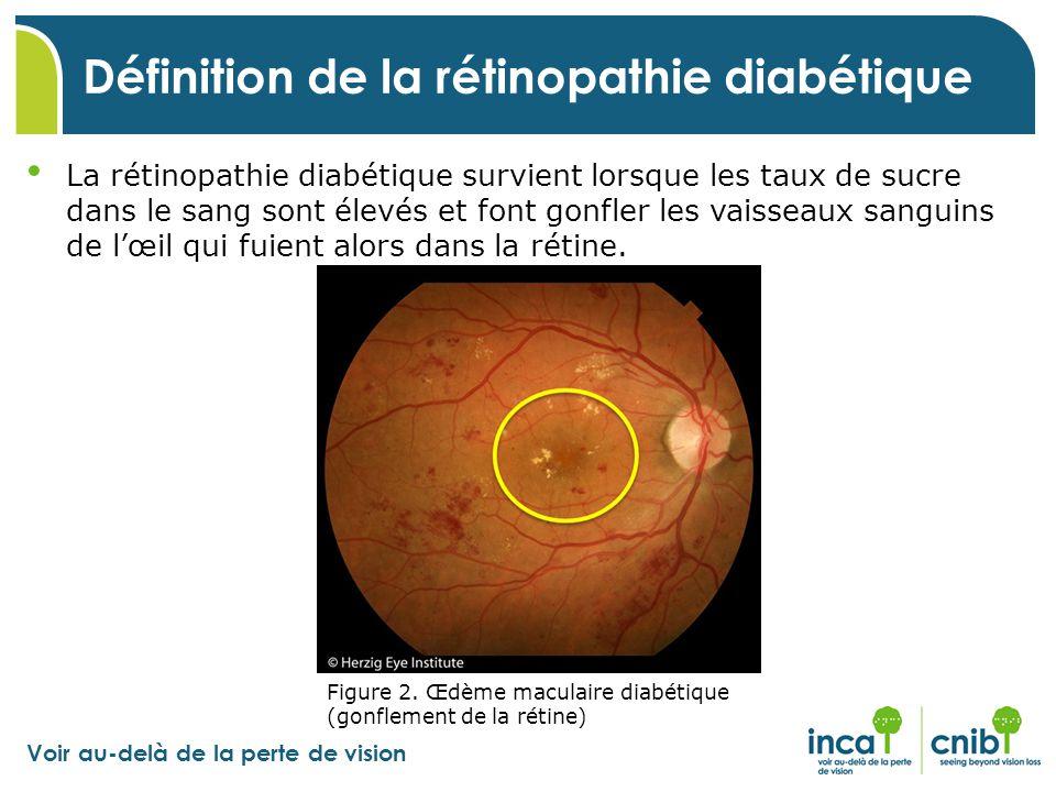 Voir au-delà de la perte de vision La rétinopathie diabétique survient lorsque les taux de sucre dans le sang sont élevés et font gonfler les vaisseau