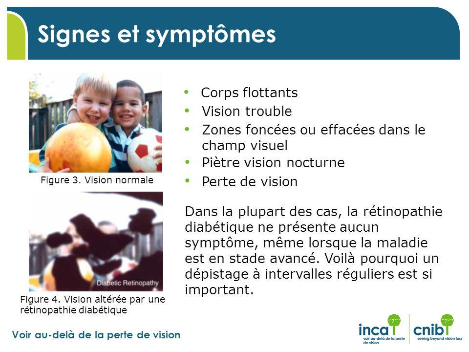 Voir au-delà de la perte de vision Figure 3. Vision normale Figure 4. Vision altérée par une rétinopathie diabétique Signes et symptômes Corps flottan