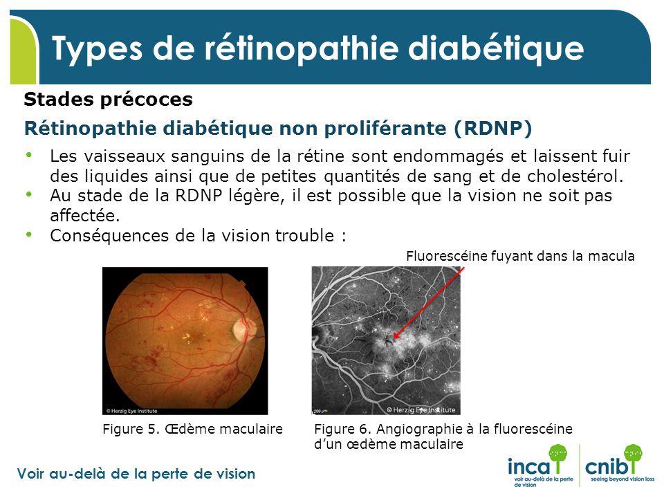 Voir au-delà de la perte de vision Types de rétinopathie diabétique Stades précoces Rétinopathie diabétique non proliférante (RDNP) Les vaisseaux sang