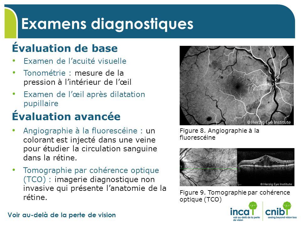 Voir au-delà de la perte de vision Examens diagnostiques Évaluation de base Tonométrie : mesure de la pression à l'intérieur de l'œil Examen de l'acui