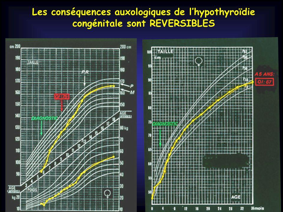 Les conséquences auxologiques de l'hypothyroïdie congénitale sont REVERSIBLES