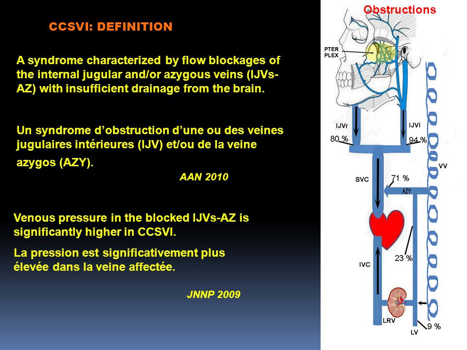 CCSVI: DEFINITION A syndrome characterized by flow blockages of the internal jugular and/or azygous veins (IJVs- AZ) with insufficient drainage from the brain.