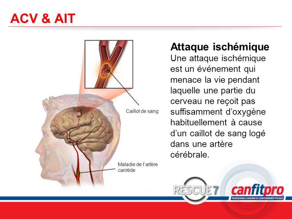 CPR Course Level 1 ACV & AIT Attaque ischémique Une attaque ischémique est un événement qui menace la vie pendant laquelle une partie du cerveau ne reçoit pas suffisamment d'oxygène habituellement à cause d'un caillot de sang logé dans une artère cérébrale.