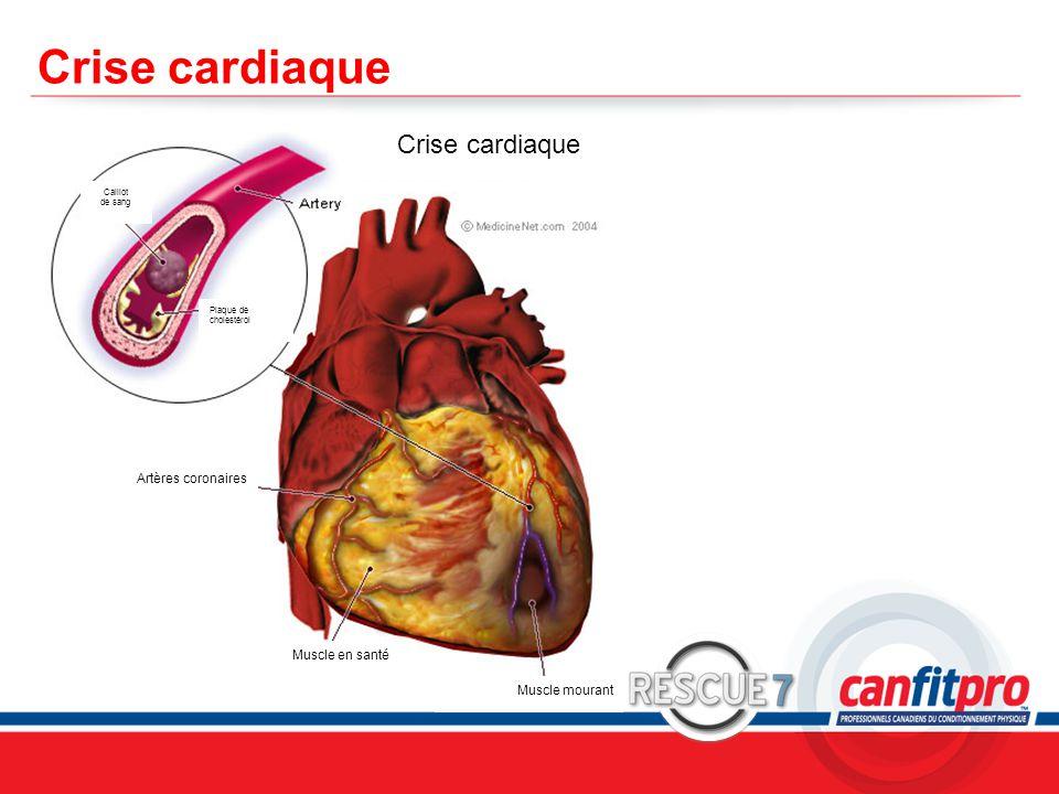 CPR Course Level 1 Crise cardiaque Caillot de sang Plaque de cholestérol Artères coronaires Muscle en santé Muscle mourant