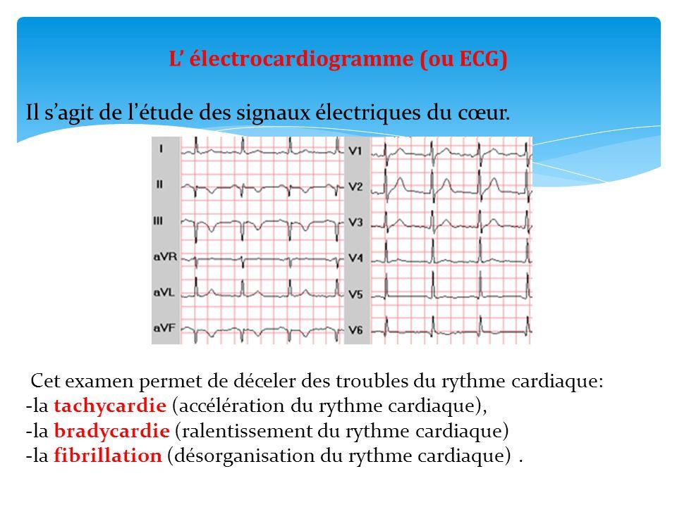 L' électrocardiogramme (ou ECG) Il s'agit de l'étude des signaux électriques du cœur. Cet examen permet de déceler des troubles du rythme cardiaque: -