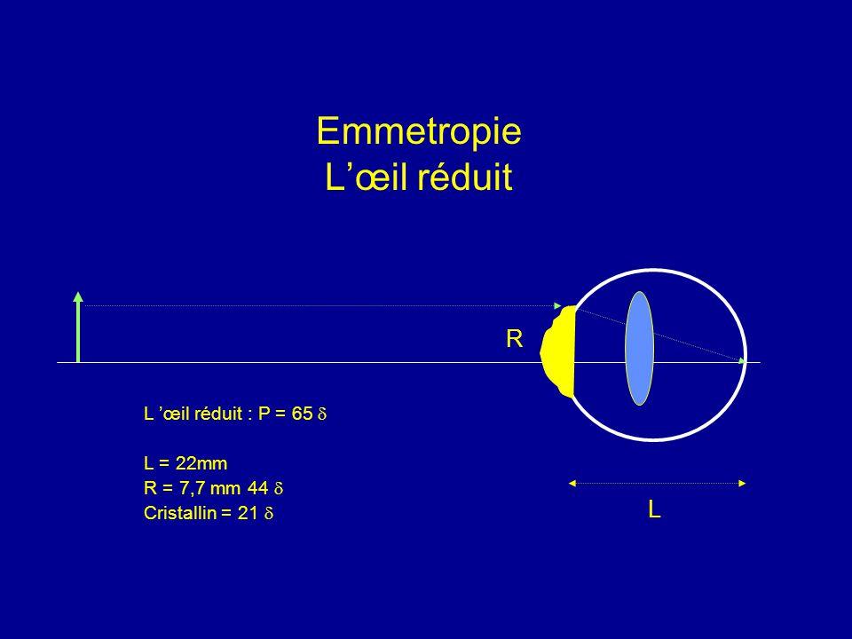 Emmetropie L'œil réduit L 'œil réduit : P = 65  L = 22mm R = 7,7 mm 44  Cristallin = 21  L R