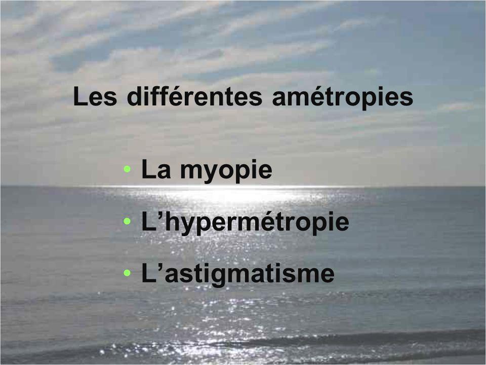 Les différentes amétropies La myopie L'hypermétropie L'astigmatisme
