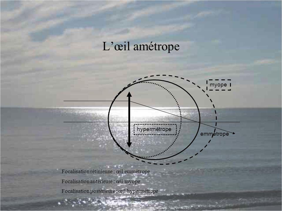 L'œil amétrope hypermétrope myope emmétrope Focalisation rétinienne : œil emmétrope Focalisation antérieure : œil myope Focalisation postérieure : œil hypermétrope