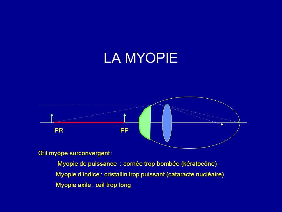 PRPP Œil myope surconvergent : Myopie de puissance : cornée trop bombée (kératocône) Myopie d'indice : cristallin trop puissant (cataracte nucléaire) Myopie axile : œil trop long